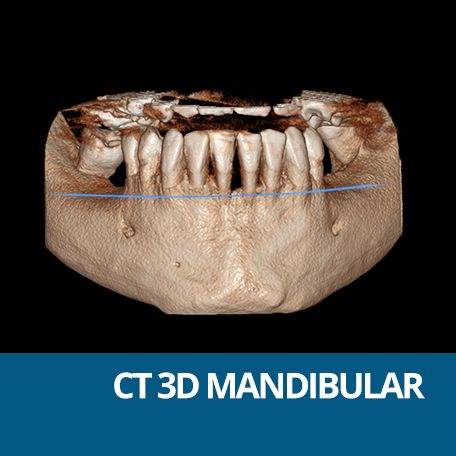 CT MANDIBULAR